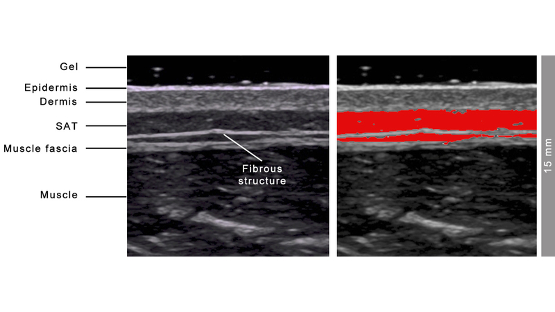 Use of Ultrasound Technology in Clinical and Sports Medicine Settings