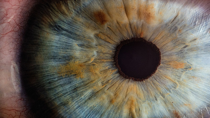 Funding boost for pioneering eye genetics research